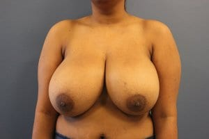 breast-reduction-patient4-before-image