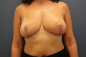 breast-reduction-patient5-after-image2
