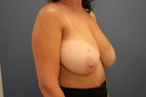 breast-reduction-patient5-before-image1