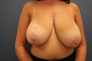 breast-reduction-patient5-before-image2