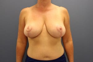 breast-reduction-patient8-after