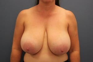 breast-reduction-patient8-before