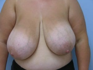breast-reduction-surgery-patient3-before-image1