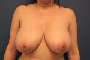 breast-reduction-surgery-patient6-before-photo