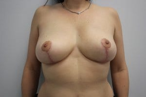 breast-reduction-surgery-patient6-recovery-after-photo