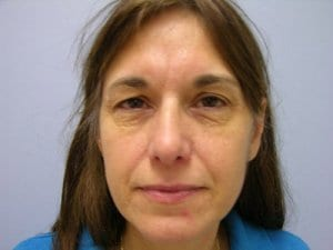facial-eye-surgery-before-image-patient1