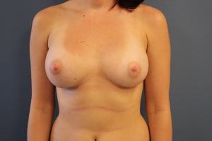 patient-8-breast-enlargement-after-view1