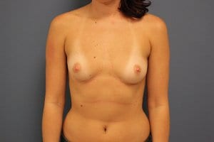 patient-8-breast-enlargement-before-view1