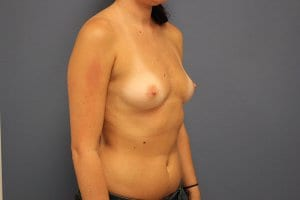 patient-8-breast-enlargement-before-view2