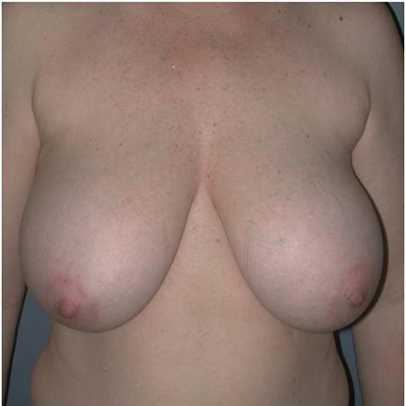 Breast lift patient photos topic