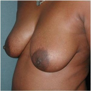 patient4-lift-breast-before-image