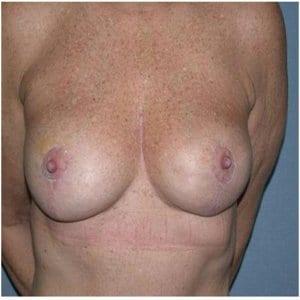 patient7-lift-procedure-after
